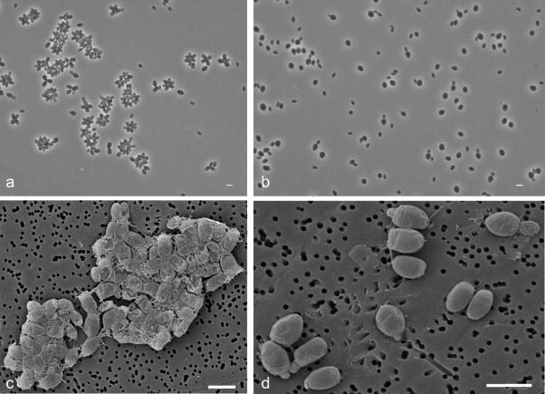 Rhodopirellula lusitana sp. nov. e Rhodopirellula rubra isoladas de macroalgas. Imagem: Joana Bondoso, Luciana Albuquerque, et al. Systematic and Applied Microbiology, 2014, 37(3):157-164.